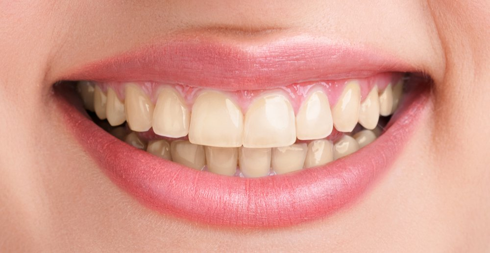 Best Teeth Whitening Services In Pune By Smilepro