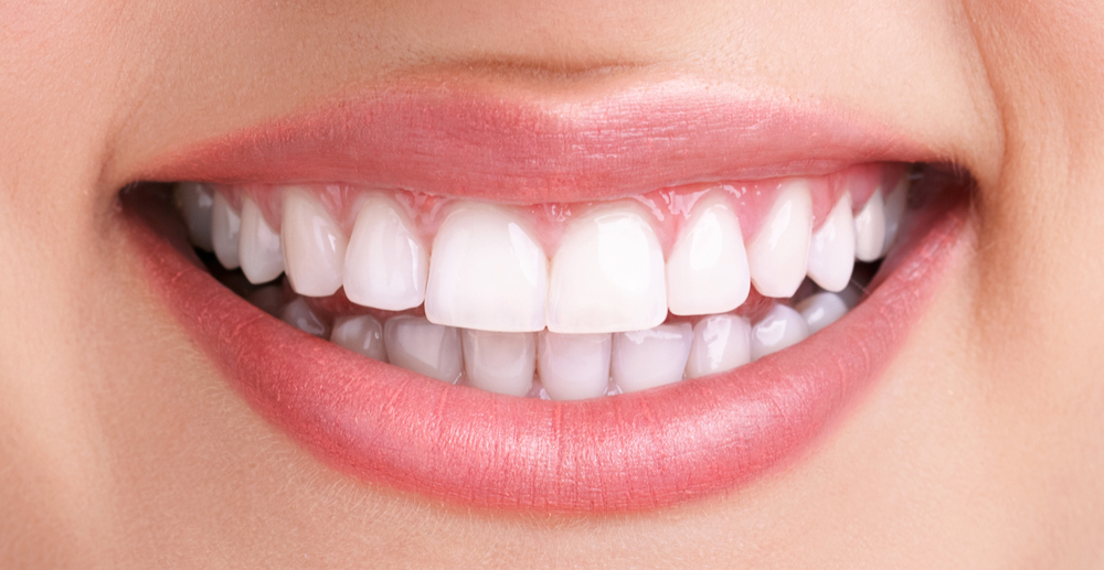 Affordable Teeth Whitenining And Polishing Services In Pune |Smilepro