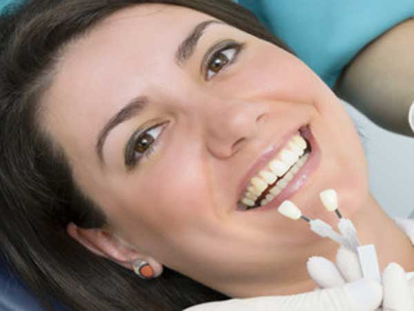 Dental Veneers Treatment In Pune By Smilepro