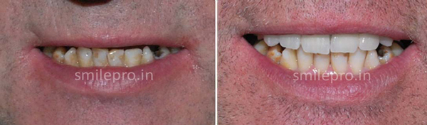 Implant-&-Full-Mouth-Rehabilitation1