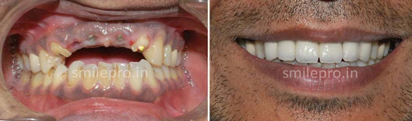 Implant-&-Full-Mouth-Rehabilitation3
