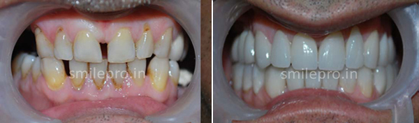 Implant-&-Full-Mouth-Rehabilitation4